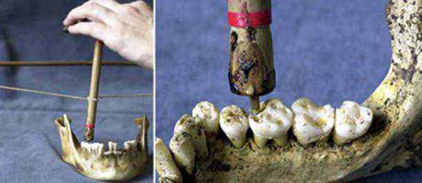 otturazione denti