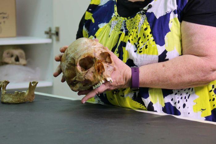 Christine Cave e uno dei crani da cui sono stati estratti i denti