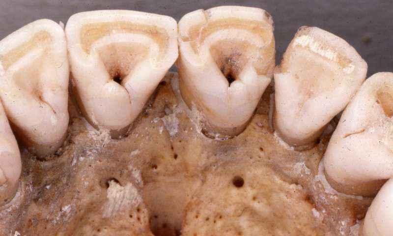 """Denti umani """"a paletta"""", una mutazione anatomica regolata dall'allele V370A del gene EDAR e connessa all'aumento della ramificazione dei dotti lattiferi."""
