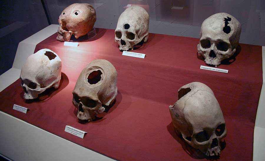 Serie di crani di pazienti sottoposti a trapanazione in epoca precolombiana. Museum of Anthropology, Archaeology and History, Lima