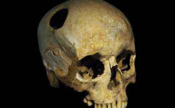 Trapanazione del cranio sul teschio di una donna del Neolitico. Il fatto che l'osso mostra segni di crescita lungo il perimetro del foro suggerirebbe che il paziente sia sopravvissuto all'intervento per qualche tempo.