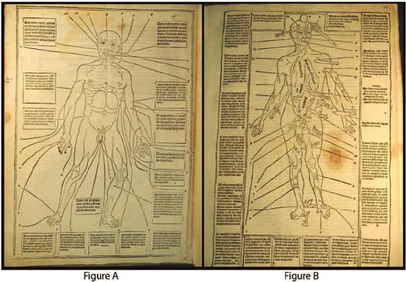 Pagine del Fasciculus medicinae