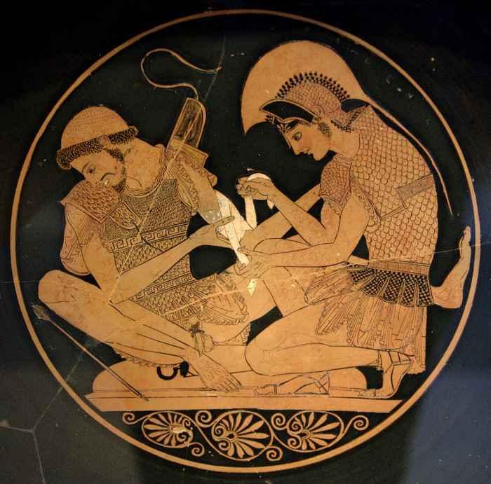 Achille applica una benda sulle ferite di Patroclo su questo vaso del 500 a.C.