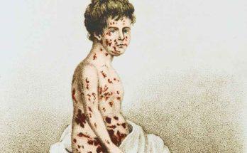 Variolizzazione: la lotta contro il vaiolo prima del vaccino